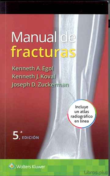 Descargar gratis ebook MANUAL DE FRACTURAS (5ª ED.) en epub