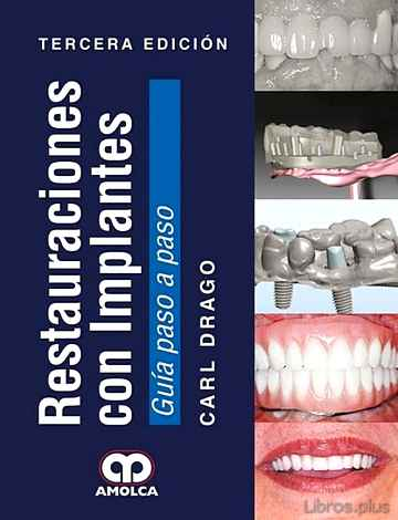 Descargar gratis ebook RESTAURACIONES CON IMPLANTES (3ª ED.) 2017 en epub